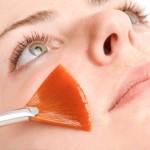 varider_clinica_estetica_peelings